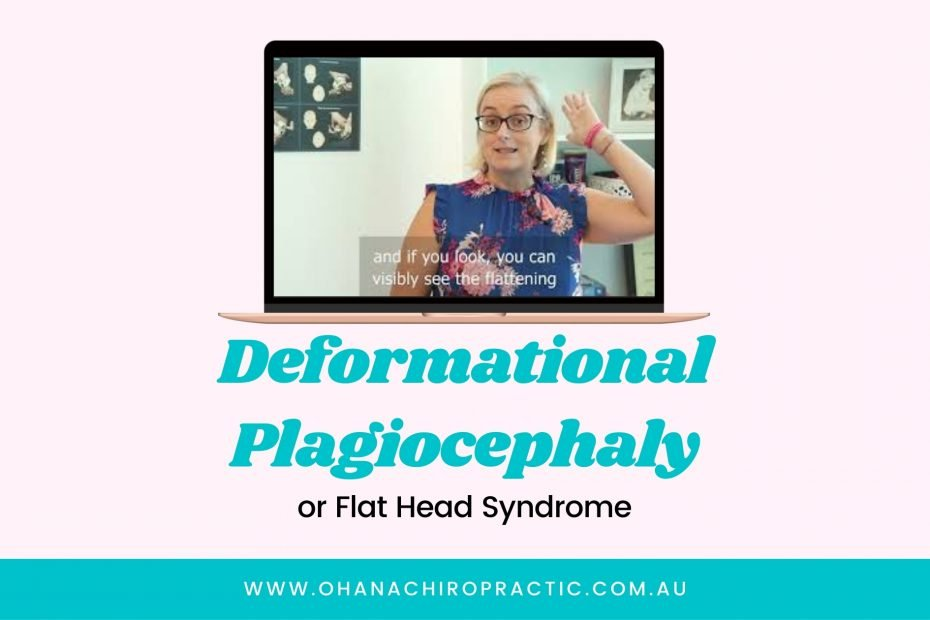 Image shows a laptop and underneath it says Deformational Plagiocephaly or flat head syndrome. Screen has an image of a woman in a blue top and glasses indicating to her head.